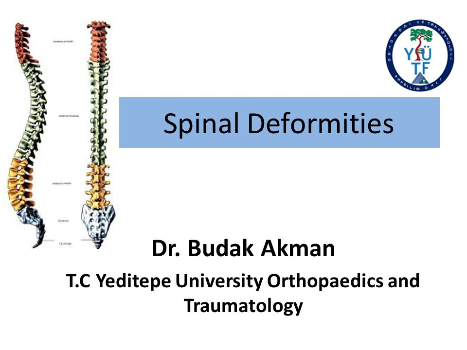 Physical Examination of Spine