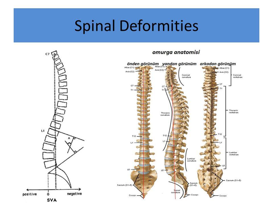 Spinal Deformities