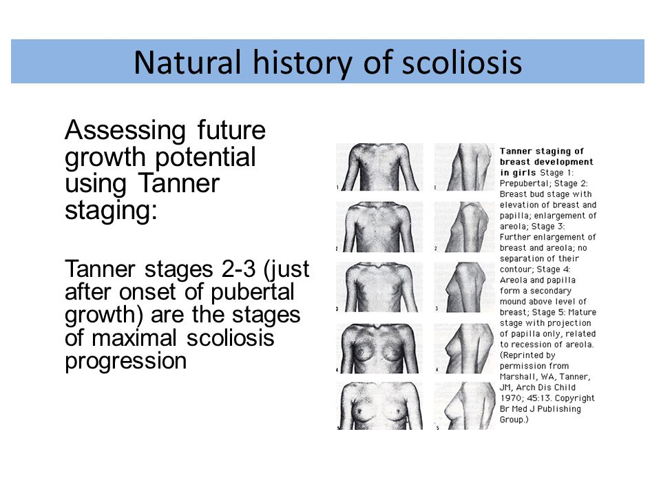 Natural history of scoliosis Assessing future growth potential using Tanner staging: Tanner stages 2-3 (just after onset of pubertal growth) are the s