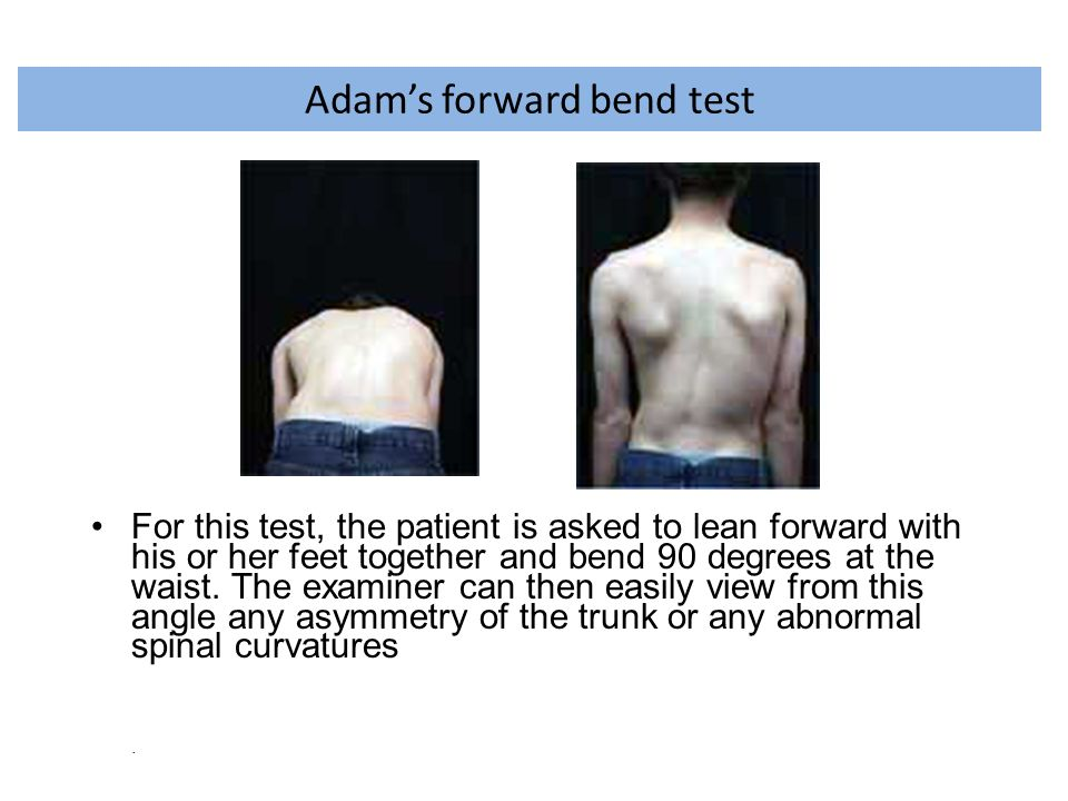 Adam's forward bend test For this test, the patient is asked to lean forward with his or her feet together and bend 90 degrees at the waist. The exami
