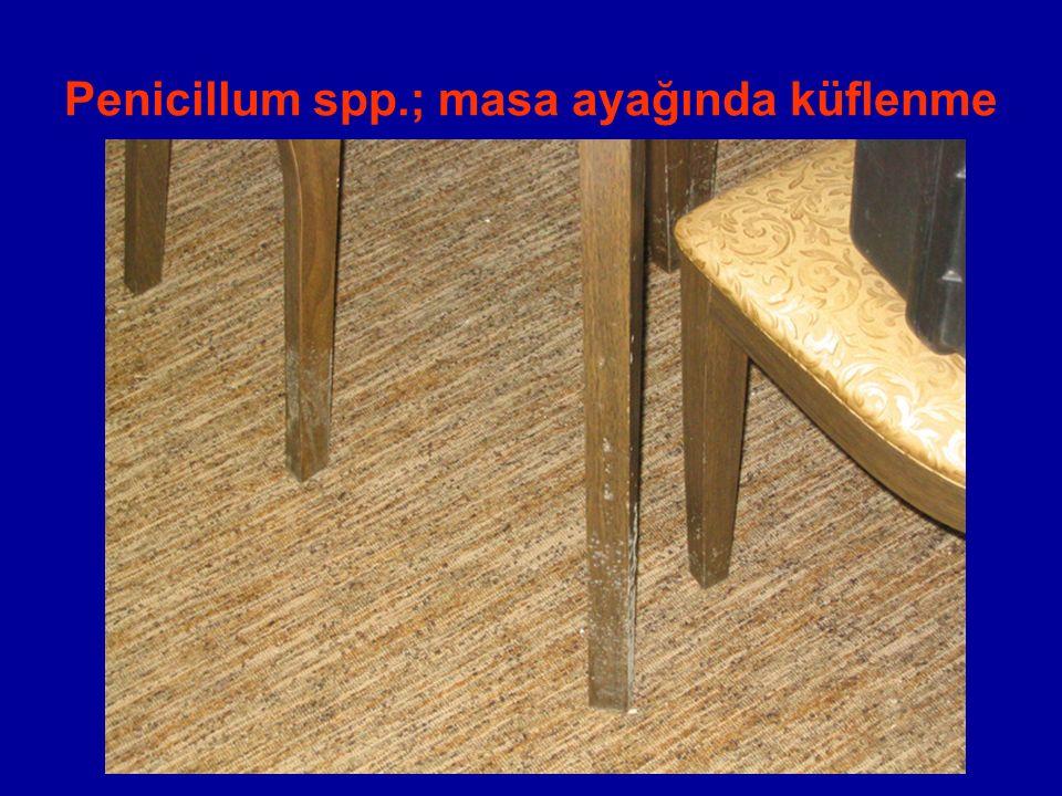 Penicillum spp.; masa ayağında küflenme