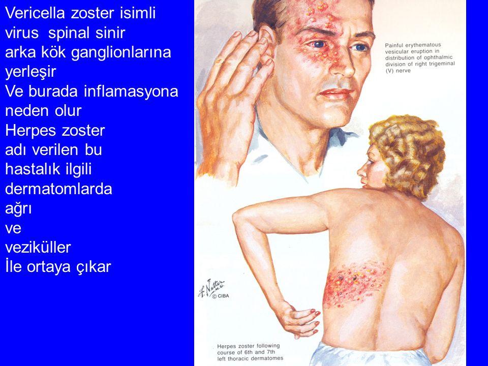 Vericella zoster isimli virus spinal sinir arka kök ganglionlarına yerleşir Ve burada inflamasyona neden olur Herpes zoster adı verilen bu hastalık il