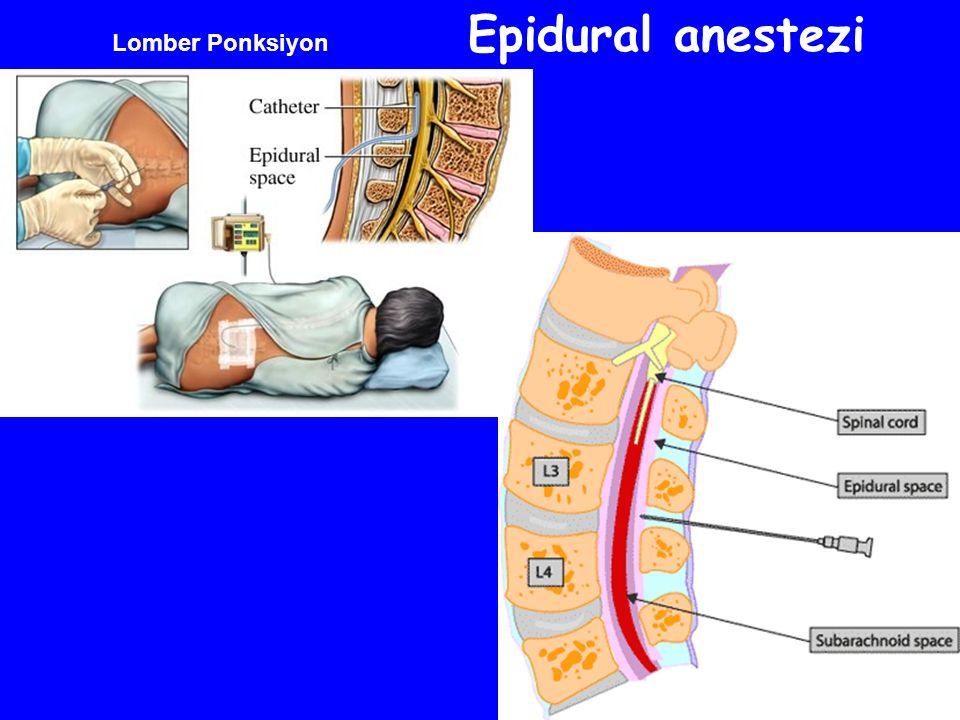 Lomber Ponksiyon Epidural anestezi
