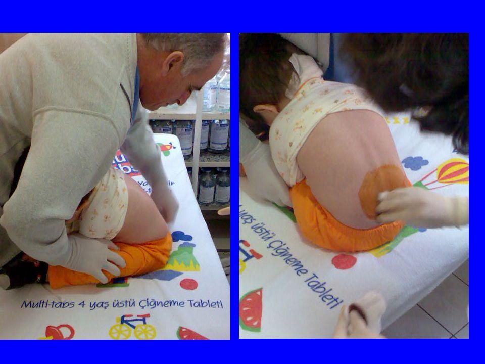 Radix posterior sensoria medulla spinalis' e sulcus posterolateralis 'den girer periferden duyuları taşır Ön kök ve arka kök foramen intervertebrale de birleşerek bir spinal siniri oluşturur n.