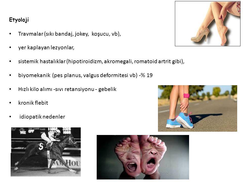 Etyoloji Travmalar (sıkı bandaj, jokey, koşucu, vb), yer kaplayan lezyonlar, sistemik hastalıklar (hipotiroidizm, akromegali, romatoid artrit gibi), b