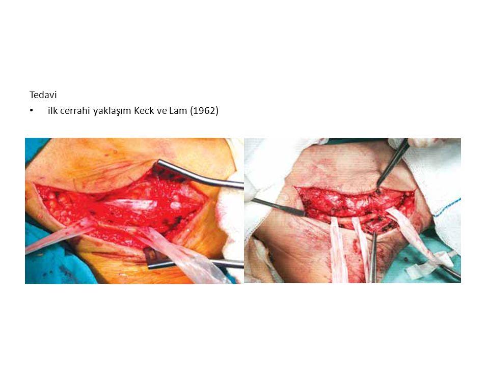 Tedavi ilk cerrahi yaklaşım Keck ve Lam (1962)