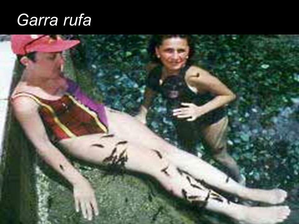 Garra rufa