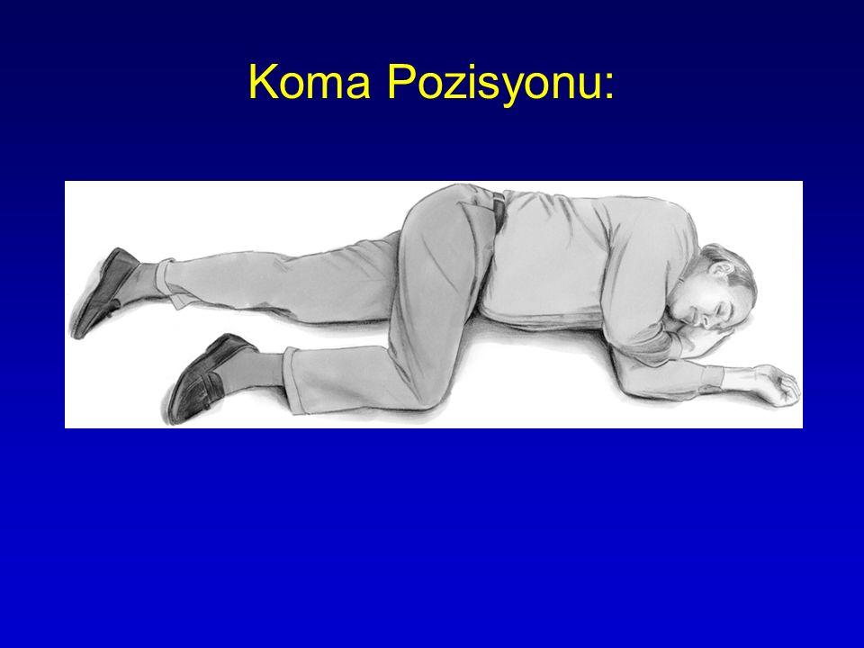 Koma Pozisyonu: