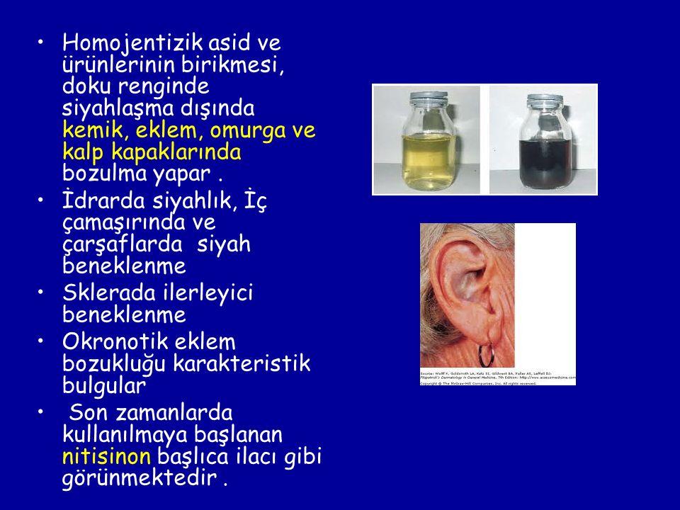 Homojentizik asid ve ürünlerinin birikmesi, doku renginde siyahlaşma dışında kemik, eklem, omurga ve kalp kapaklarında bozulma yapar. İdrarda siyahlık