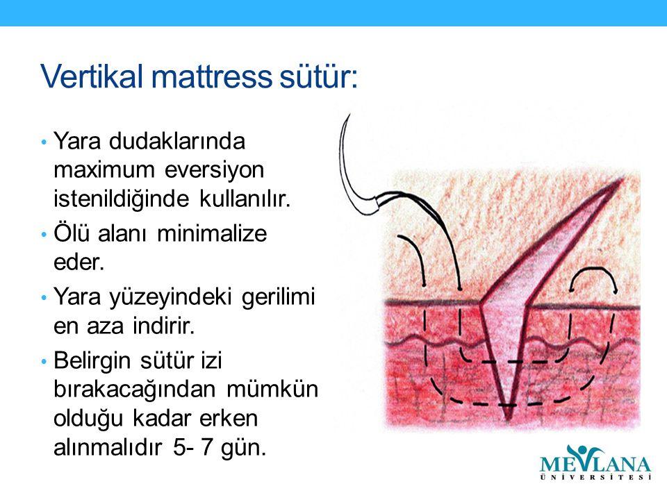 Vertikal mattress sütür: Yara dudaklarında maximum eversiyon istenildiğinde kullanılır. Ölü alanı minimalize eder. Yara yüzeyindeki gerilimi en aza in