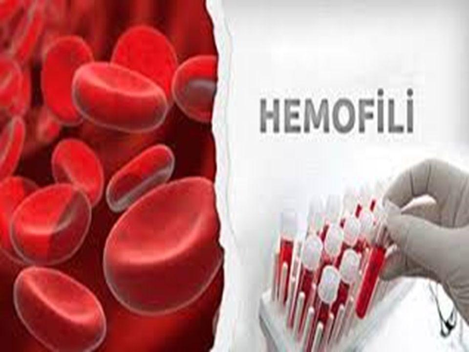 HEMOFİLLİ HASTALIĞI  Hemofili hastalığı; Kandaki pıhtılaşmayı sağlayan faktörlerden faktör 8 (VIII) ve 9 (IX)'un hayat boyu eksik ve kanın pıhtılaşmasının yetersiz olduğu, vücutta meydana gelen kanamaların durmaması şeklinde gelişen bir doğumsal kan hastalığıdır.