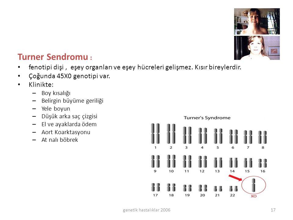 genetik hastalıklar 200617 Turner Sendromu : fenotipi dişi, eşey organları ve eşey hücreleri gelişmez.