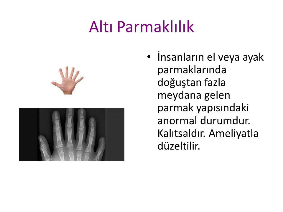 Altı Parmaklılık İnsanların el veya ayak parmaklarında doğuştan fazla meydana gelen parmak yapısındaki anormal durumdur.