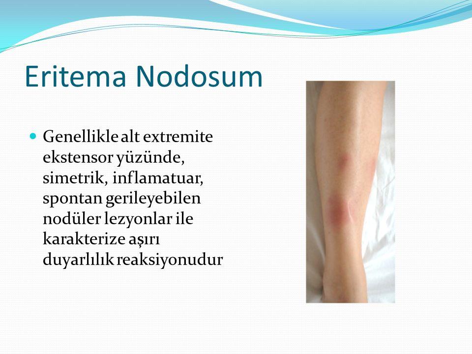 Eritema Nodosum Genellikle alt extremite ekstensor yüzünde, simetrik, inflamatuar, spontan gerileyebilen nodüler lezyonlar ile karakterize aşırı duyar