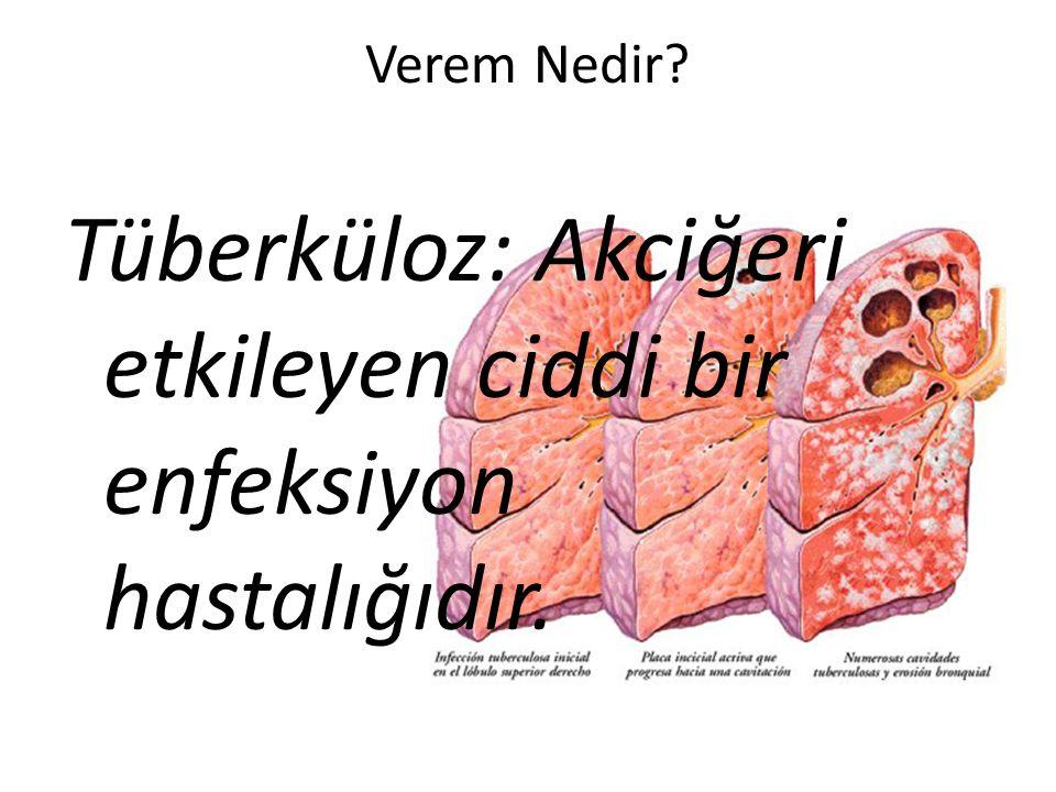 Verem Nedir Tüberküloz: Akciğeri etkileyen ciddi bir enfeksiyon hastalığıdır.