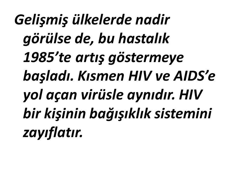 Gelişmiş ülkelerde nadir görülse de, bu hastalık 1985'te artış göstermeye başladı. Kısmen HIV ve AIDS'e yol açan virüsle aynıdır. HIV bir kişinin bağı