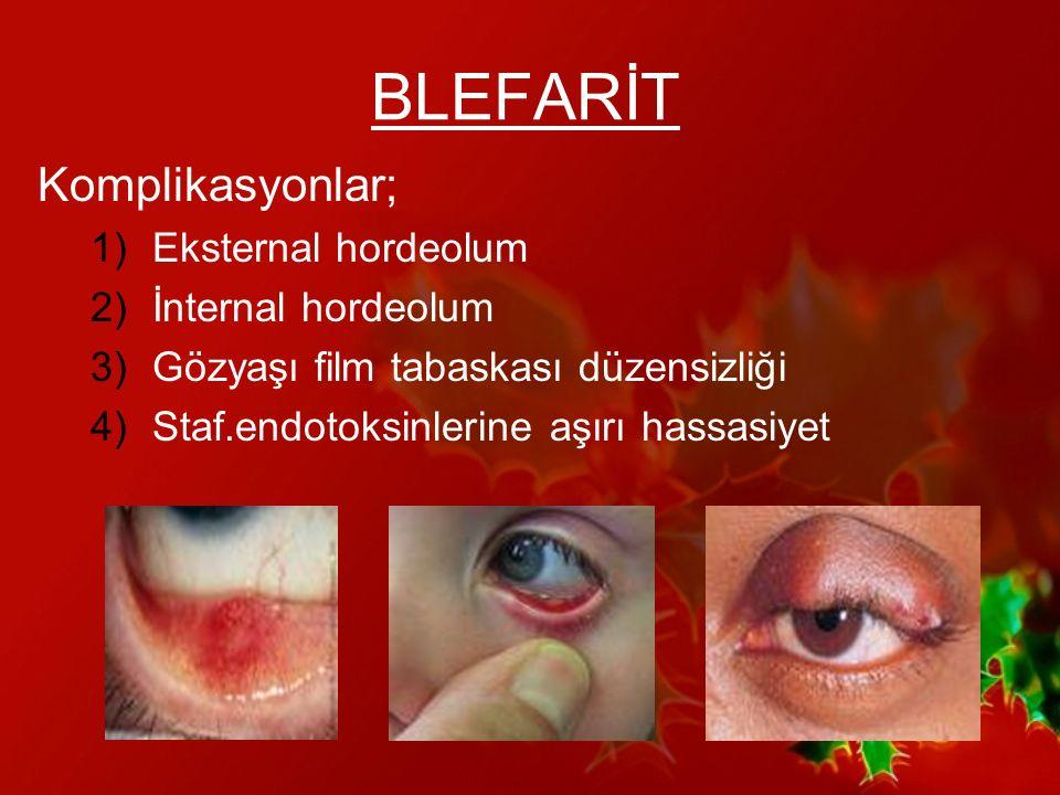 KERATİT Kornea inflamasyonu 2 tip; yüzeyel,derin (interstisyel) Risk faktörleri; –Kontakt lens –Kuru göz –Oküler yüzey bozuklukları –Korneal patoloji –Steroid tedavisi