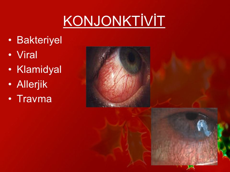 Bakteriyel Konjonktivit Yaygın, genellikle kendini sınırlayan En sık etkenler; –S.epidermidis –S.aureus –Strep.pneumonia –H.influenza –M.lacunata