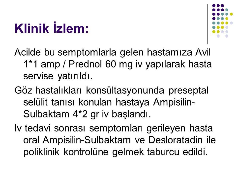 Klinik İzlem: Acilde bu semptomlarla gelen hastamıza Avil 1*1 amp / Prednol 60 mg iv yapılarak hasta servise yatırıldı. Göz hastalıkları konsültasyonu