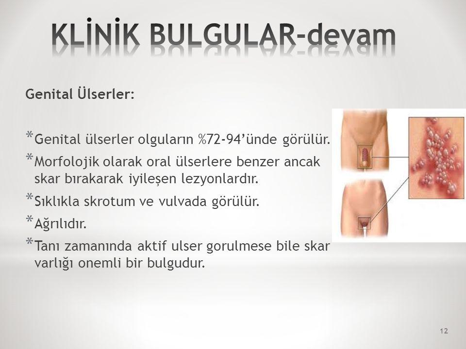 Genital Ülserler: * Genital ülserler olguların %72-94'ünde görülür.
