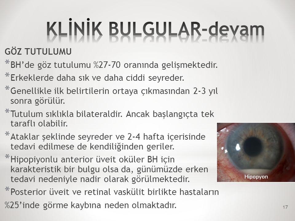 GÖZ TUTULUMU * BH'de göz tutulumu %27-70 oranında gelişmektedir.