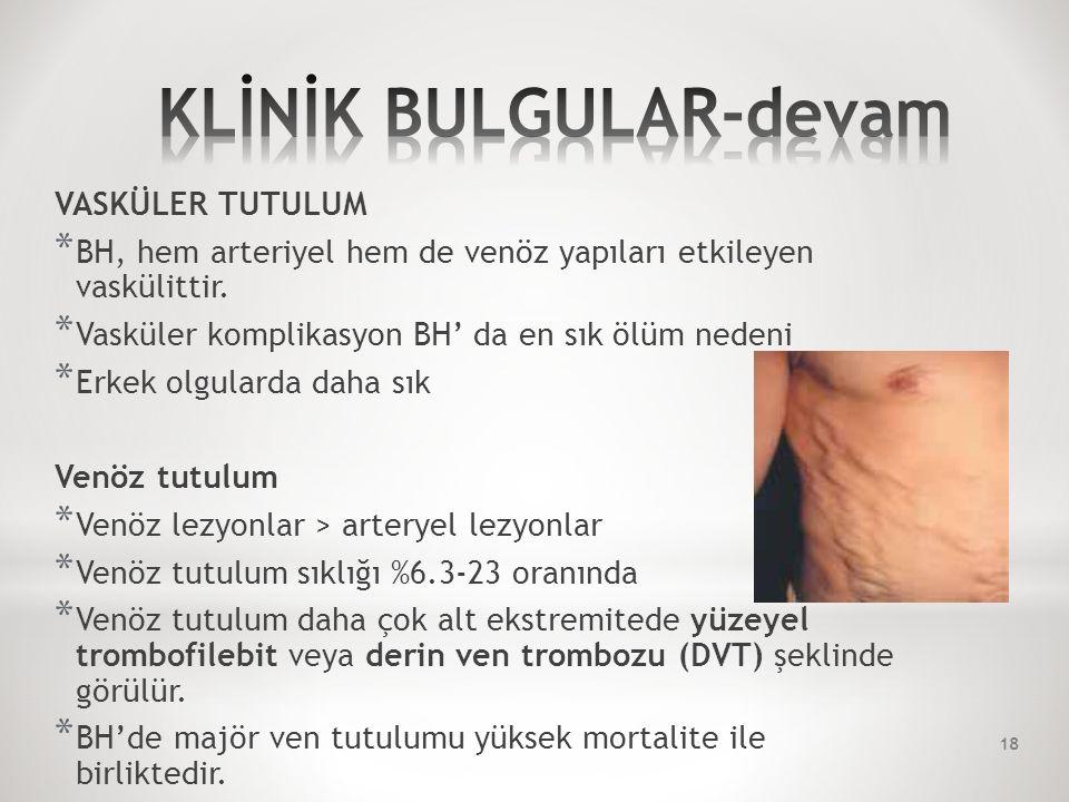 VASKÜLER TUTULUM * BH, hem arteriyel hem de venöz yapıları etkileyen vaskülittir.