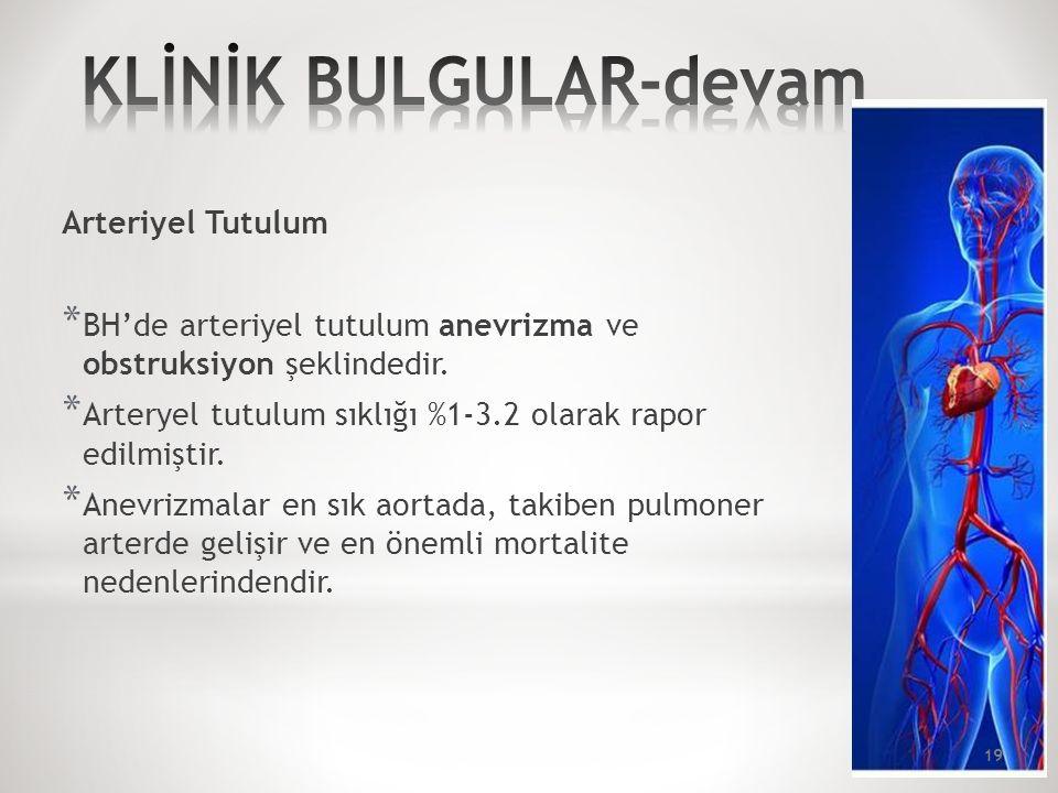 Arteriyel Tutulum * BH'de arteriyel tutulum anevrizma ve obstruksiyon şeklindedir.