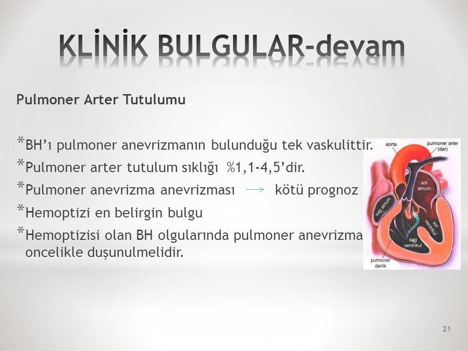 Pulmoner Arter Tutulumu * BH'ı pulmoner anevrizmanın bulunduğu tek vaskulittir.