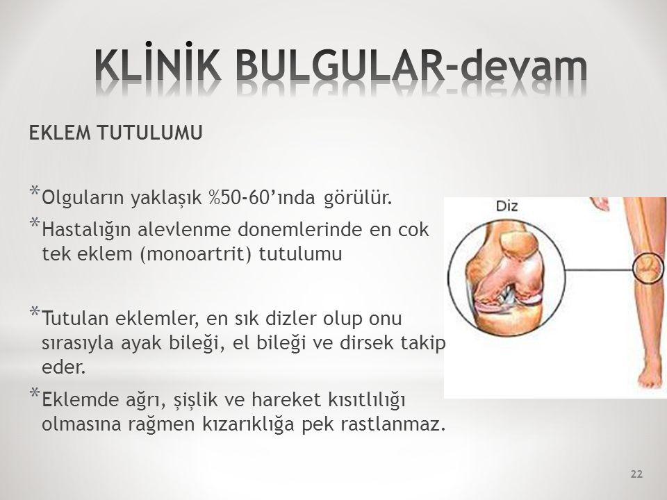 EKLEM TUTULUMU * Olguların yaklaşık %50-60'ında görülür.