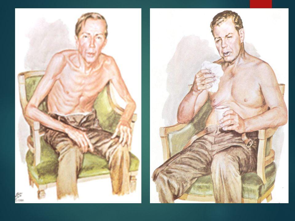  B.Aktivite ve Egzersiz  Hasta mobildir. Hastada Sık sık öksürük ve yeşil balgam görülmektedir.