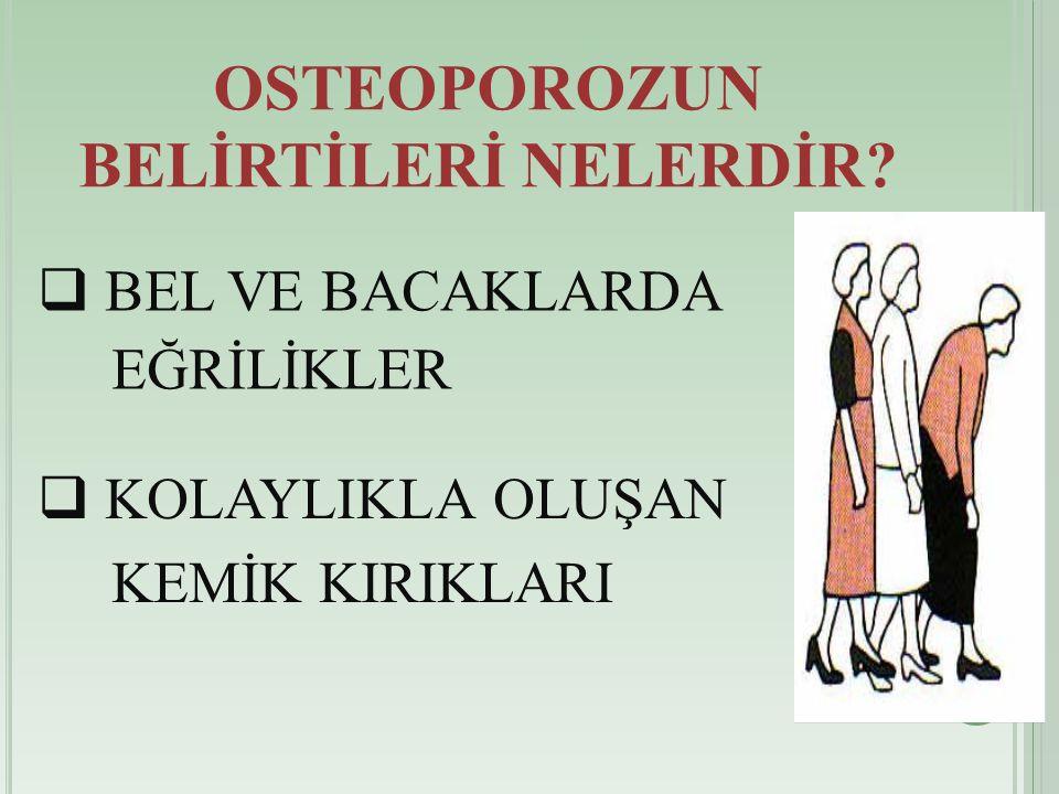 OSTEOPOROZUN BELİRTİLERİ NELERDİR.