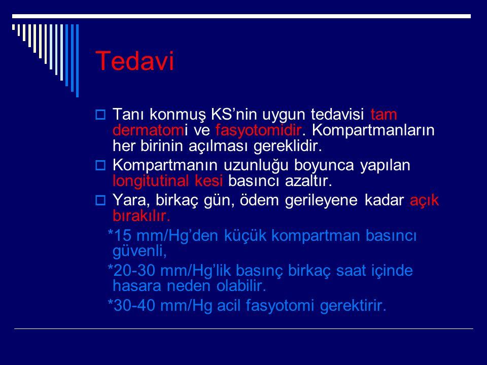 Tedavi  Tanı konmuş KS'nin uygun tedavisi tam dermatomi ve fasyotomidir.