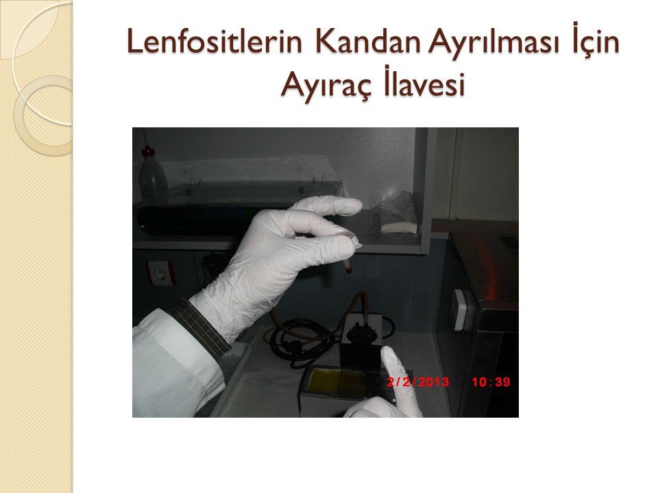 Lenfositlerin Kandan Ayrılması İ çin Ayıraç İ lavesi
