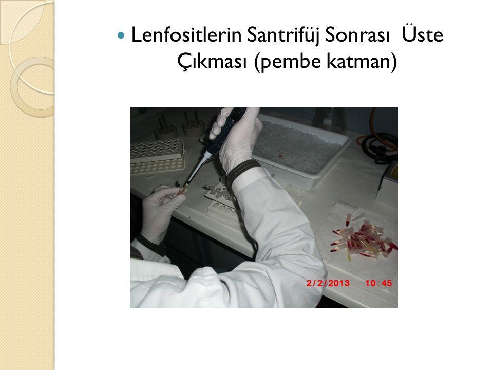 Lenfositlerin Santrifüj Sonrası Üste Çıkması (pembe katman)