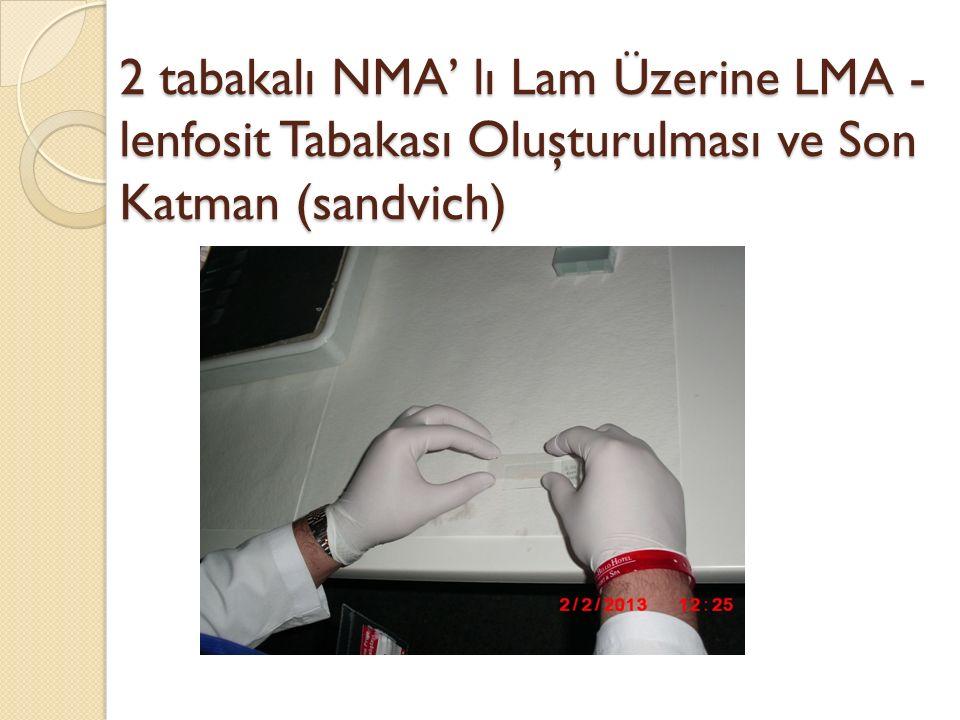 2 tabakalı NMA' lı Lam Üzerine LMA - lenfosit Tabakası Oluşturulması ve Son Katman (sandvich)