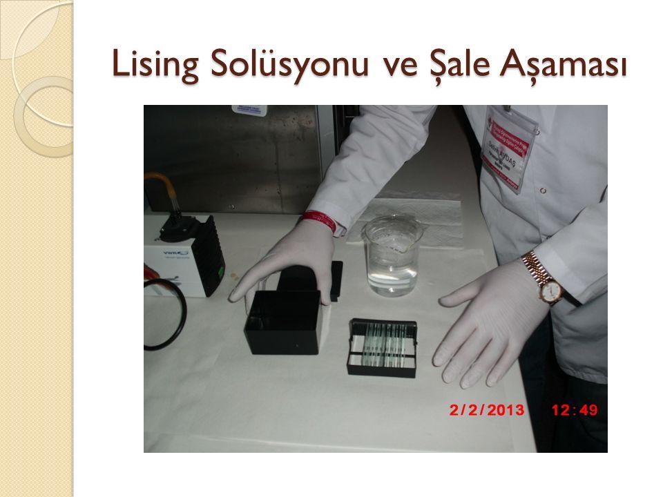 Lising Solüsyonu ve Şale Aşaması