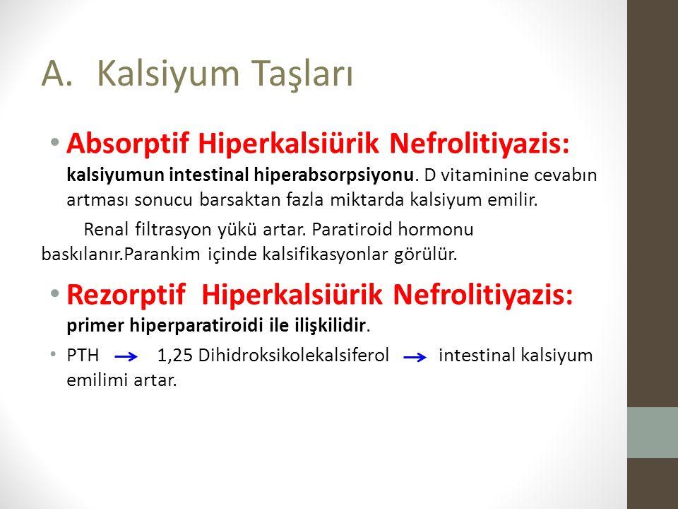Absorptif Hiperkalsiürik Nefrolitiyazis: kalsiyumun intestinal hiperabsorpsiyonu.