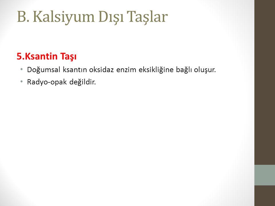 B.Kalsiyum Dışı Taşlar 5.Ksantin Taşı Doğumsal ksantın oksidaz enzim eksikliğine bağlı oluşur.