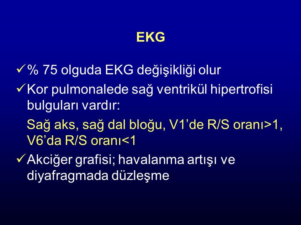 EKG % 75 olguda EKG değişikliği olur Kor pulmonalede sağ ventrikül hipertrofisi bulguları vardır: Sağ aks, sağ dal bloğu, V1'de R/S oranı>1, V6'da R/S