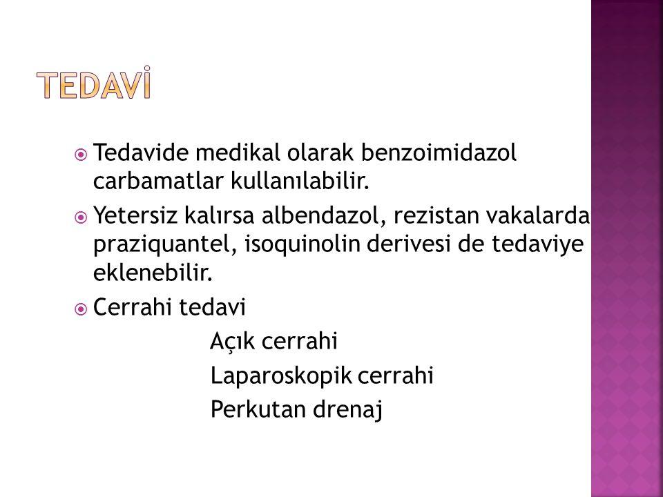  Tedavide medikal olarak benzoimidazol carbamatlar kullanılabilir.