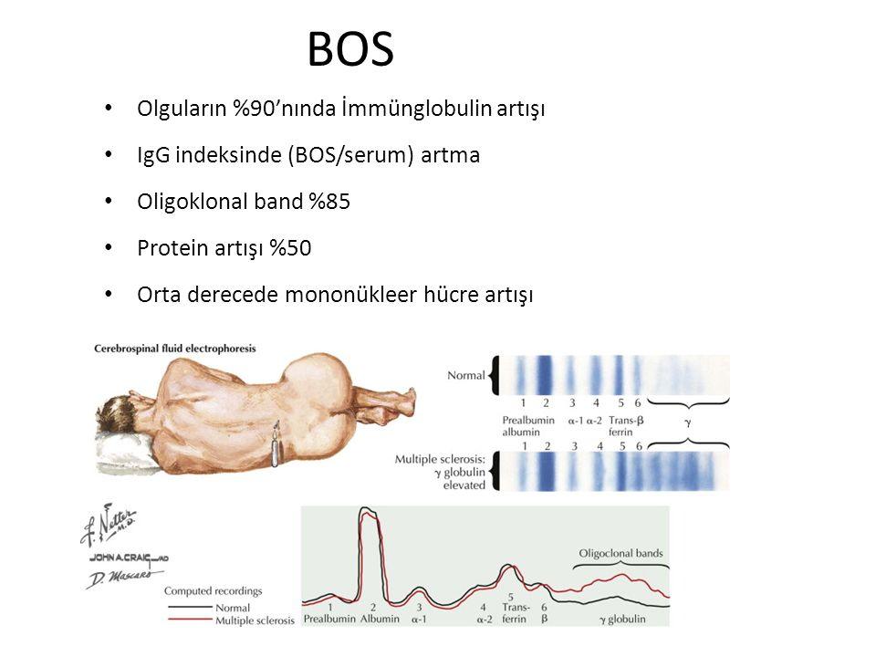 BOS Olguların %90'nında İmmünglobulin artışı IgG indeksinde (BOS/serum) artma Oligoklonal band %85 Protein artışı %50 Orta derecede mononükleer hücre