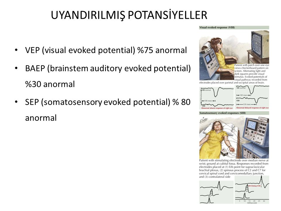 UYANDIRILMIŞ POTANSİYELLER VEP (visual evoked potential) %75 anormal BAEP (brainstem auditory evoked potential) %30 anormal SEP (somatosensory evoked potential) % 80 anormal