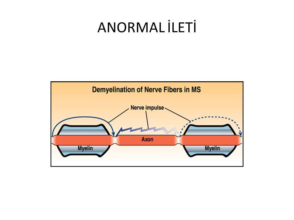 BOS Olguların %90'nında İmmünglobulin artışı IgG indeksinde (BOS/serum) artma Oligoklonal band %85 Protein artışı %50 Orta derecede mononükleer hücre artışı
