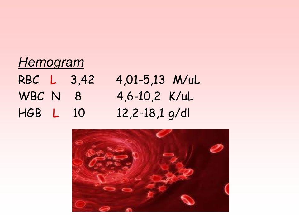 Hemogram RBC L 3,42 4,01-5,13 M/uL WBC N 8 4,6-10,2 K/uL HGB L 10 12,2-18,1 g/dl