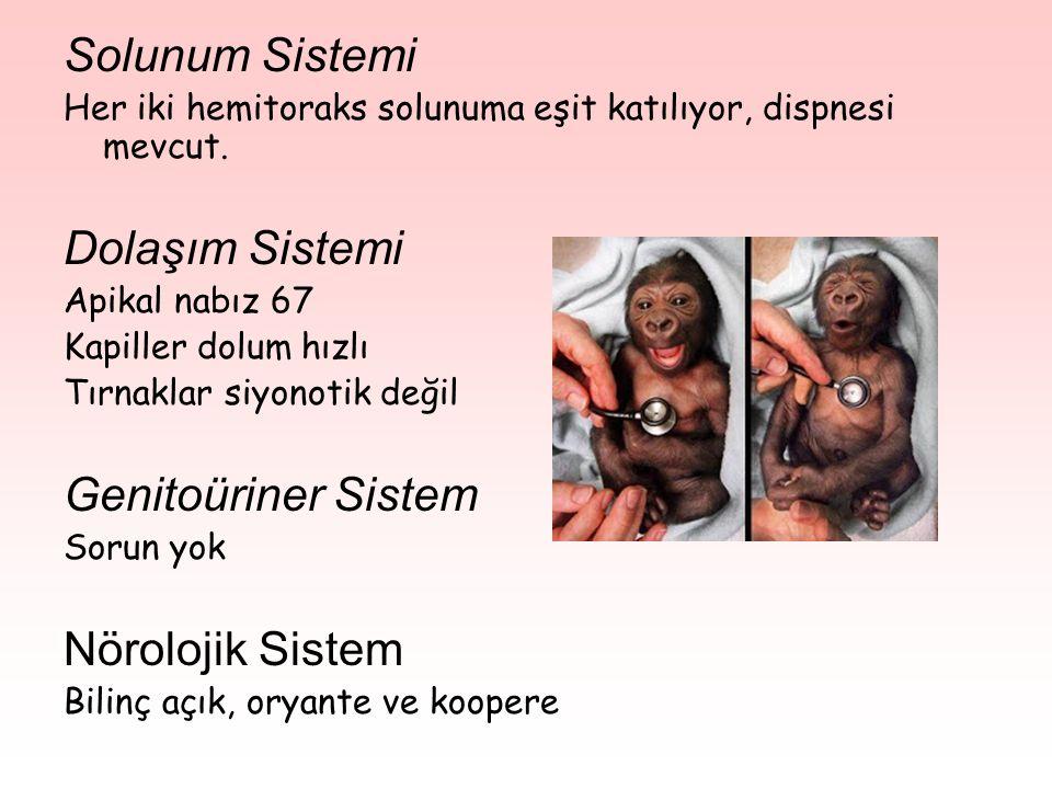 Solunum Sistemi Her iki hemitoraks solunuma eşit katılıyor, dispnesi mevcut.