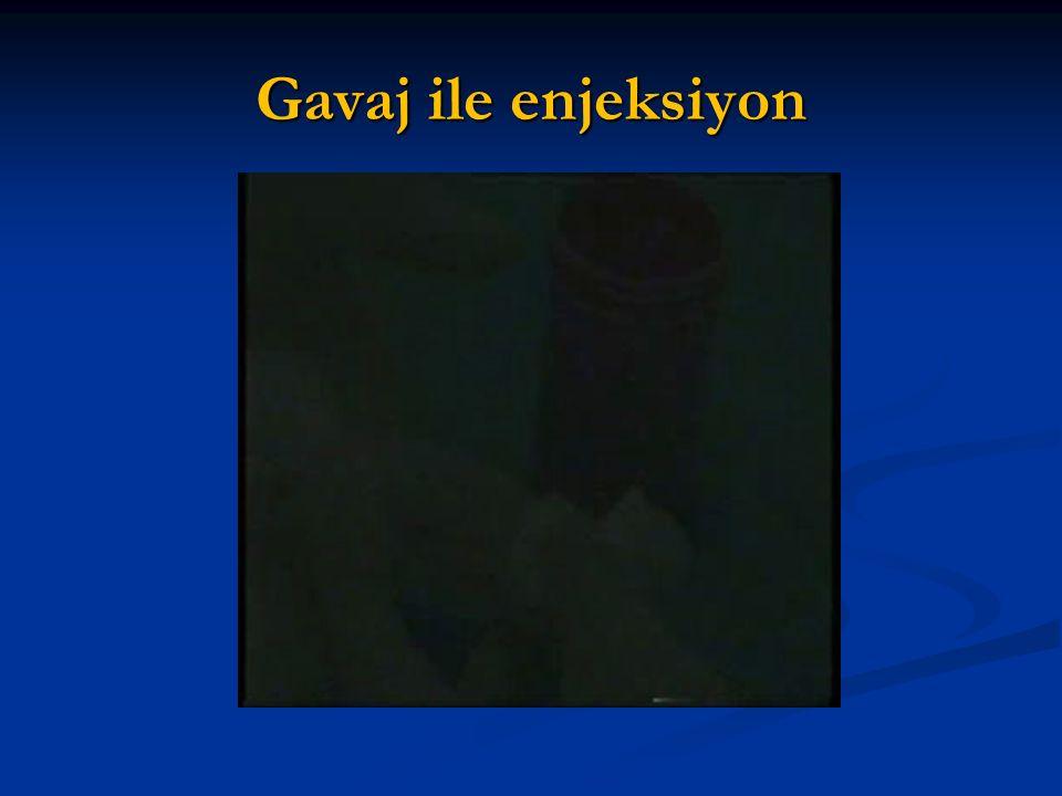 Gavaj ile enjeksiyon