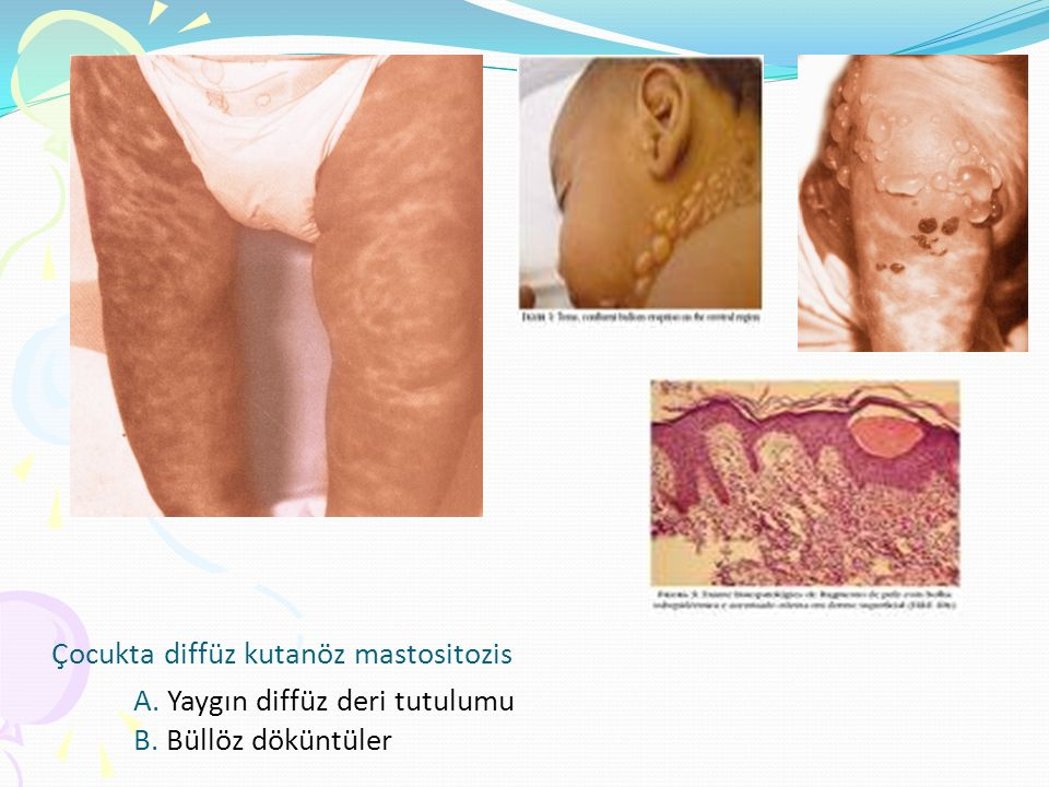 Çocukta diffüz kutanöz mastositozis A. Yaygın diffüz deri tutulumu B. Büllöz döküntüler