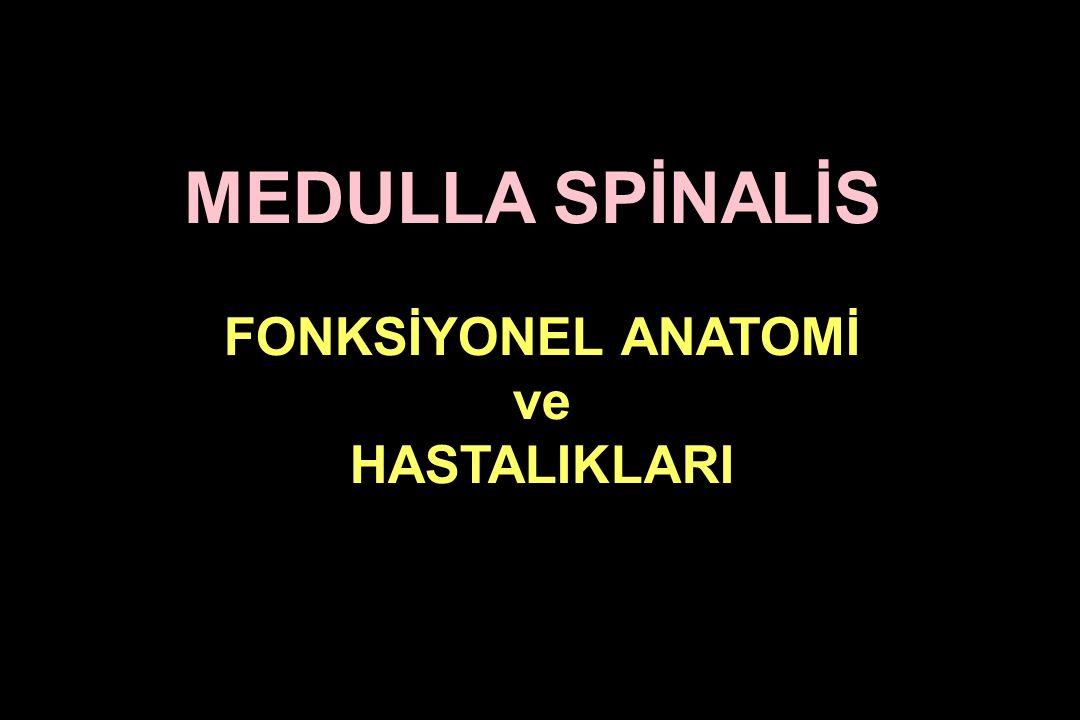 Syringomyeli*, Hidromyeli, hematomyeli, intramedullar tümörler, travma Klinik: - Önde çaprazlaşan ağrı ve termoaljezi aksonları tutulumu sonucu Şal tarzınde yerleşen disosiyatif anestezi olur.