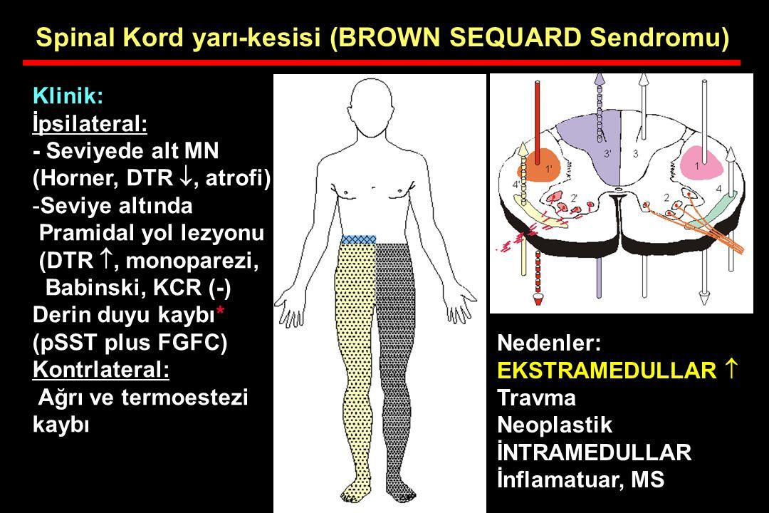 Spinal Kord yarı-kesisi (BROWN SEQUARD Sendromu) Klinik: İpsilateral: - Seviyede alt MN (Horner, DTR , atrofi) -Seviye altında Pramidal yol lezyonu (