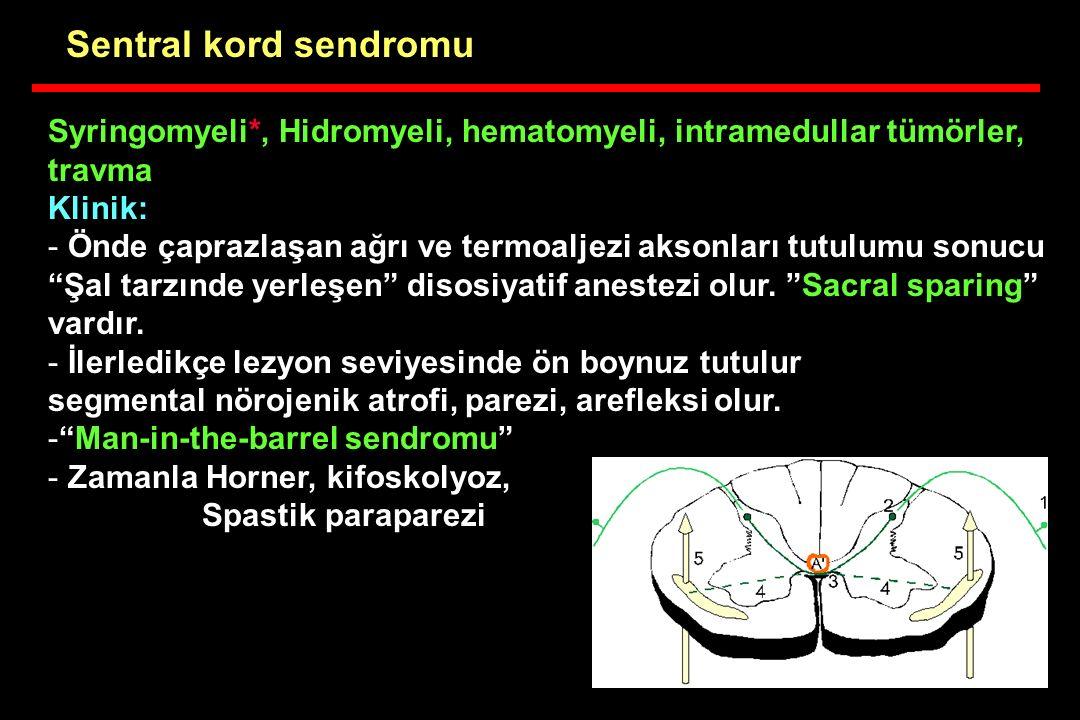 """Syringomyeli*, Hidromyeli, hematomyeli, intramedullar tümörler, travma Klinik: - Önde çaprazlaşan ağrı ve termoaljezi aksonları tutulumu sonucu """"Şal t"""
